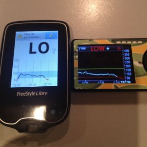 Result of a double bolus.